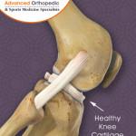 Healthy Knee Cartilage