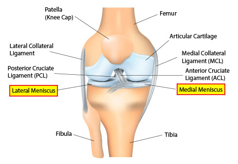 Meniscal tear advanced orthopedic sports medicine specialists a meniscal tear is a rupturing of one or more of the fibrocartilage strips in the knee called menisci when doctors and patients refer to torn cartilage ccuart Images