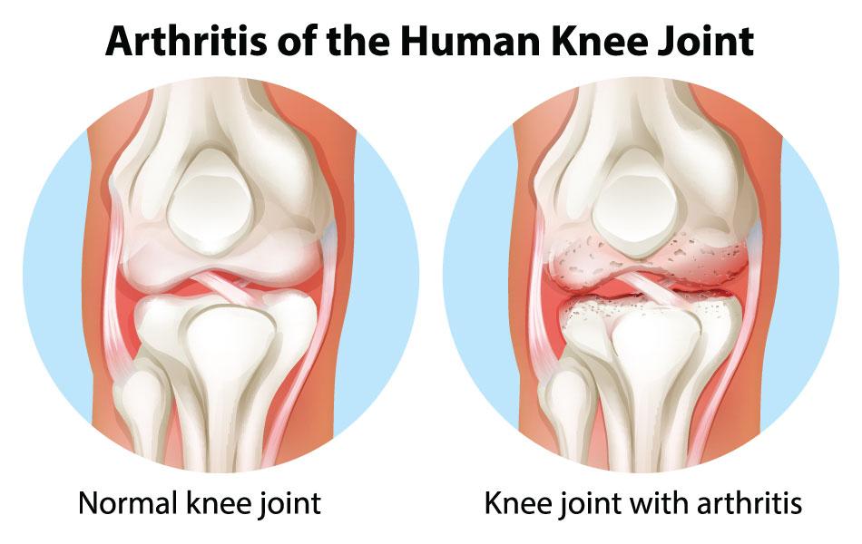 Knee Arthritis , Advanced Orthopedic \u0026 Sports Medicine