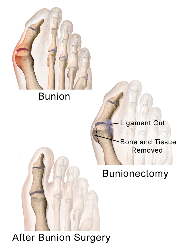 What is a Bunion - Advanced Orthopedic & Sports Medicine Specialists