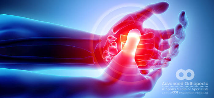 Nerve Pain in Your Hand